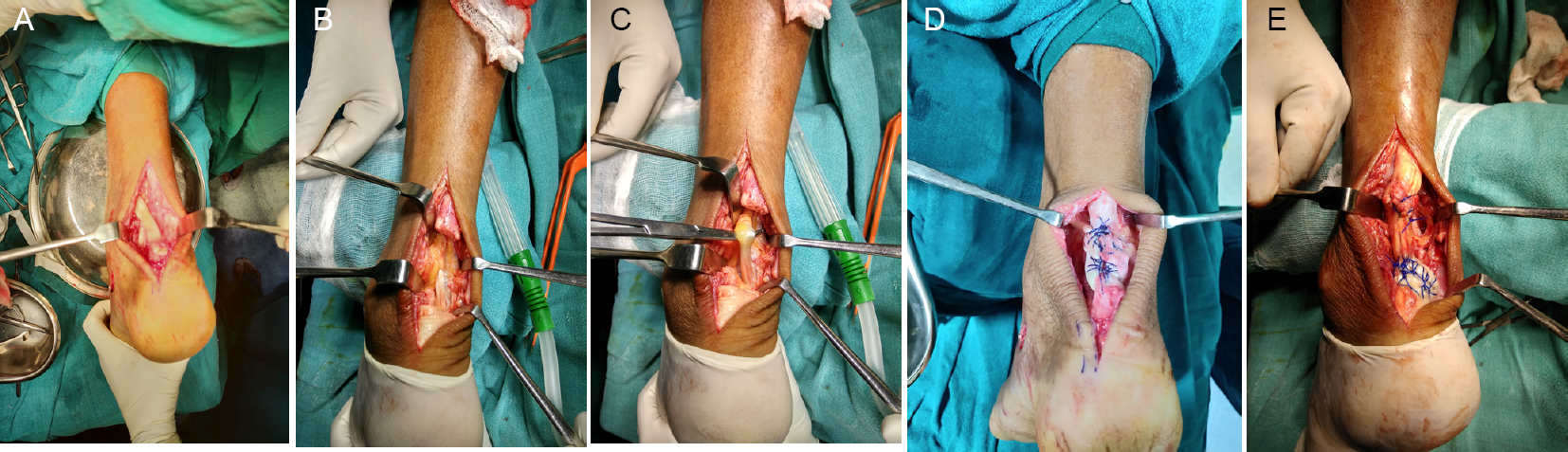 Figure 2: Intraoperative photos.